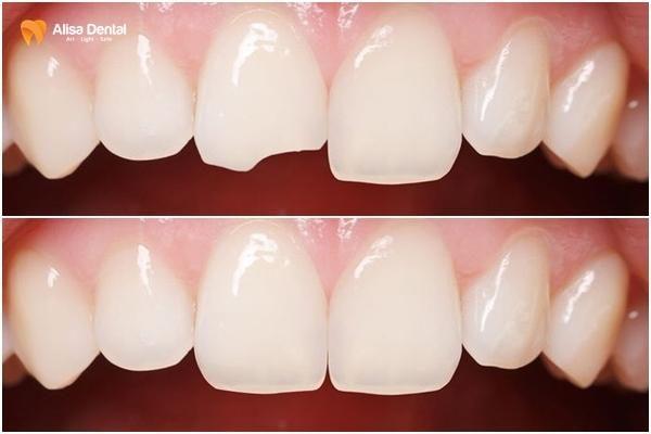 Bọc răng sứ bị vỡ 2