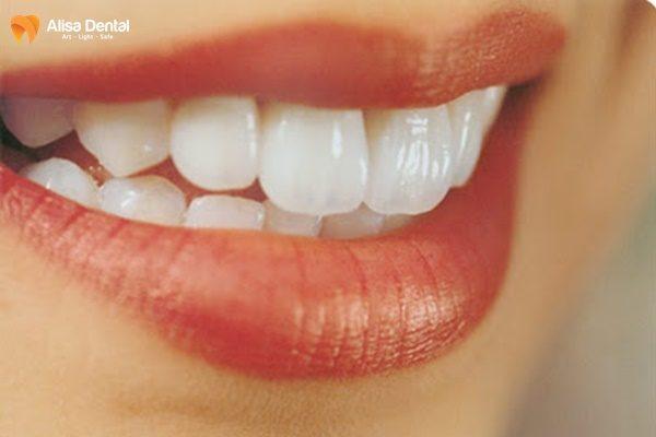 Chi phí chỉnh răng vẩu 1