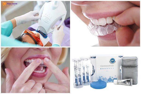 Tẩy trắng răng giữ được bao lâu 1
