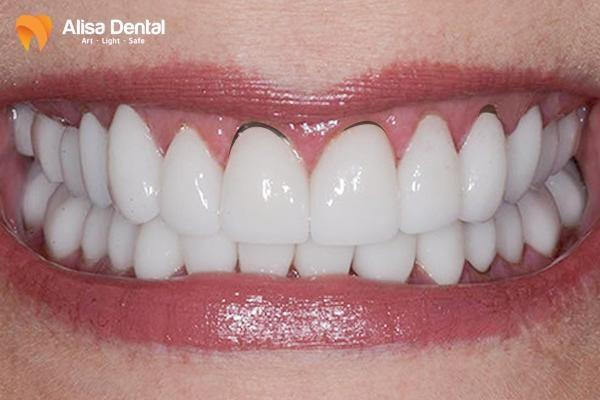 Bọc răng sứ bị đen nướu 1