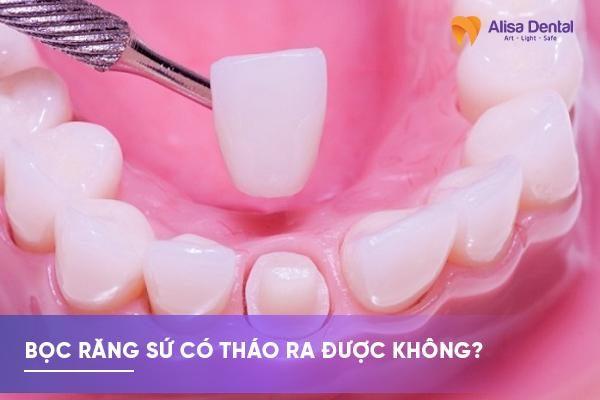 Bọc răng sứ có tháo ra được không 1