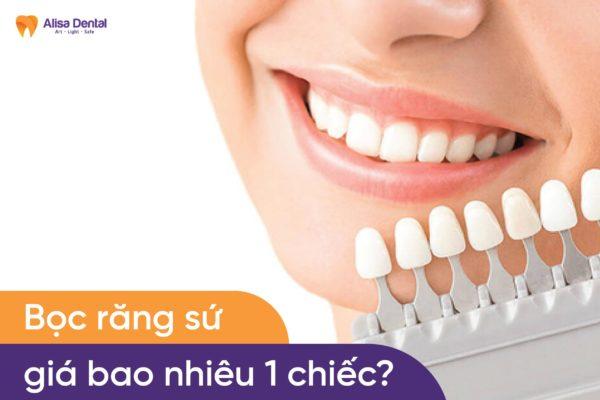 Bọc răng sứ giá bao nhiêu 1 chiếc 3