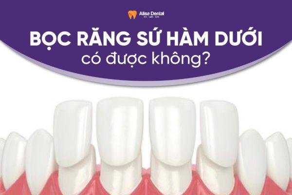 Bọc răng sứ hàm dưới có được không 1