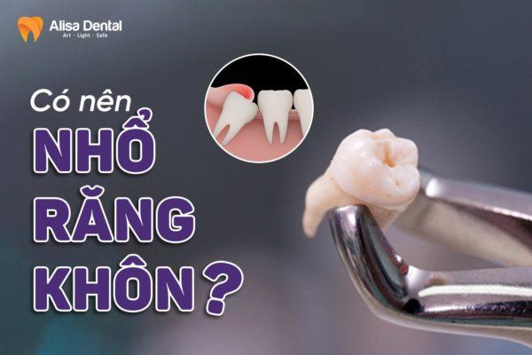 Có nên nhổ răng khôn 1