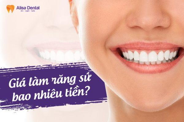 Giá làm răng sứ 2