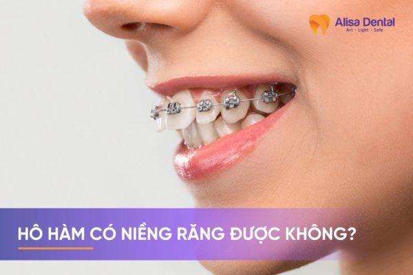hô hàm có niềng răng được không 2