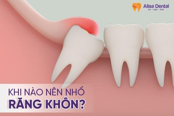 khi nào nên nhổ răng khôn 3