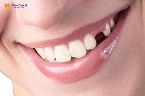 Trồng răng implant có đau không 3