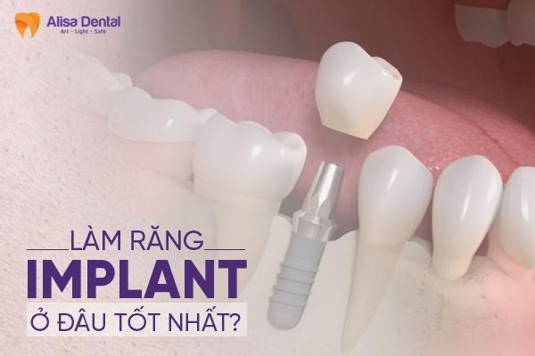 làm răng Implant ở đâu tốt nhất 2