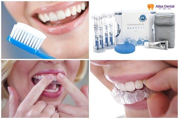 Tẩy trắng răng mất bao lâu 1