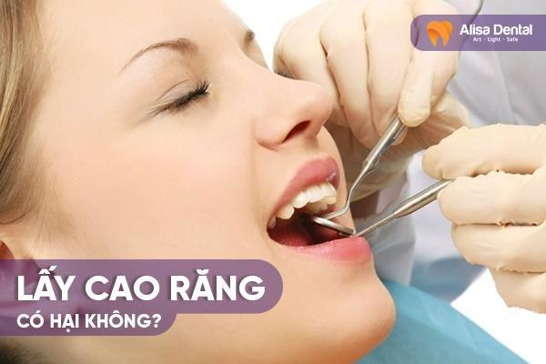 Lấy cao răng có hại không 2