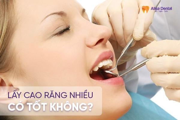 Lấy cao răng nhiều có tốt không 2