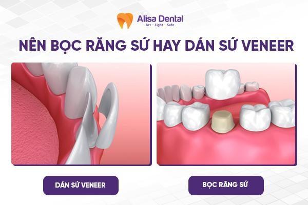 Nên bọc răng sứ hay dán veneer 3