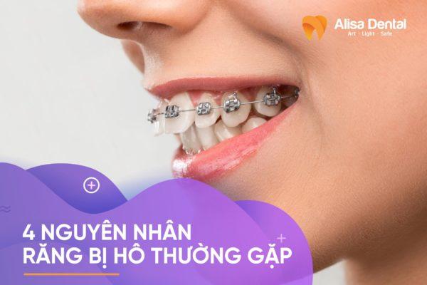 nguyên nhân răng bị hô 1