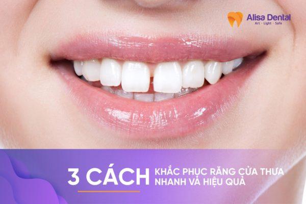 răng cửa thưa 2