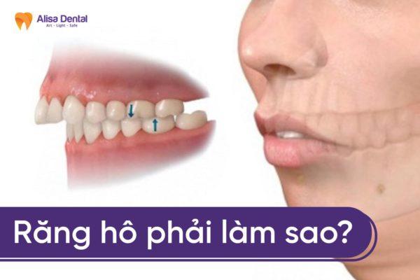 Răng vẩu phải làm sao 3