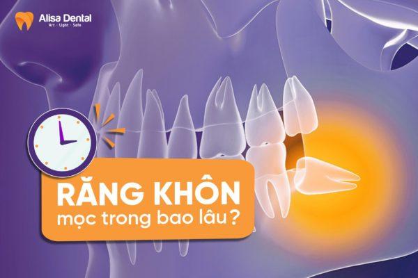 Răng khôn mọc trong bao lâu 2