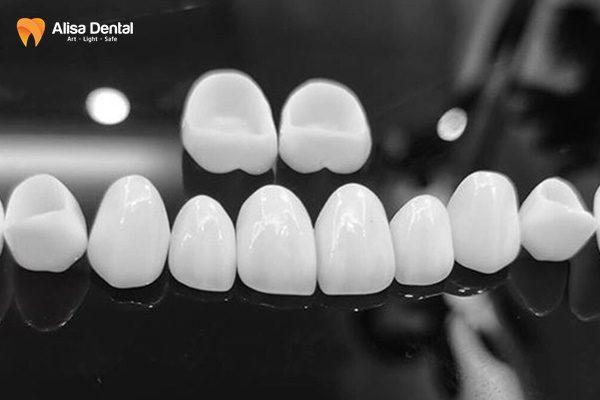 Trồng răng sứ có bị hôi miệng không? 3