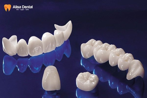 Răng sứ Cercon có mấy loại 3