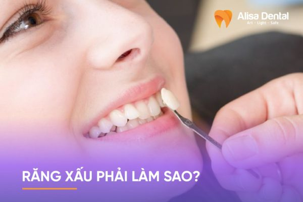 Răng xấu phải làm sao 2