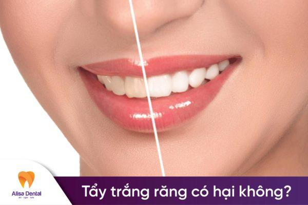 Tẩy trắng răng có hại không 1