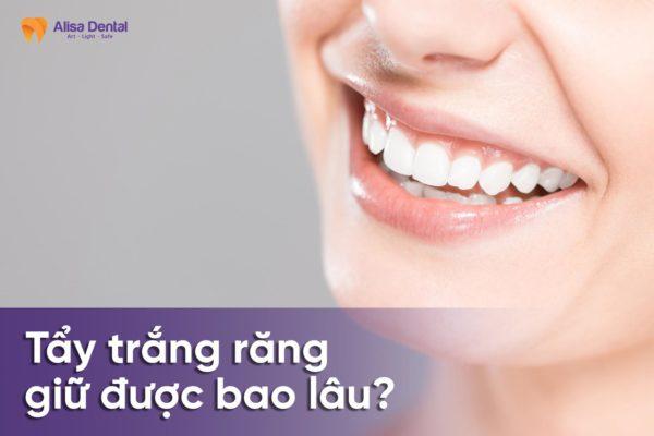 Tẩy trắng răng giữ được bao lâu 2