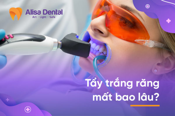 Tẩy trắng răng mất bao lâu 5
