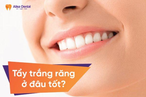Tẩy trắng răng ở đâu tốt 3