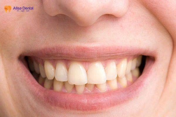 Tẩy trắng răng bằng máng 3