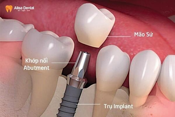 Trồng răng implant có bị hôi miệng không 1