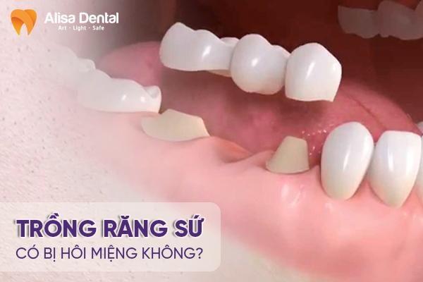 Trồng răng sứ có bị hôi miệng không 2