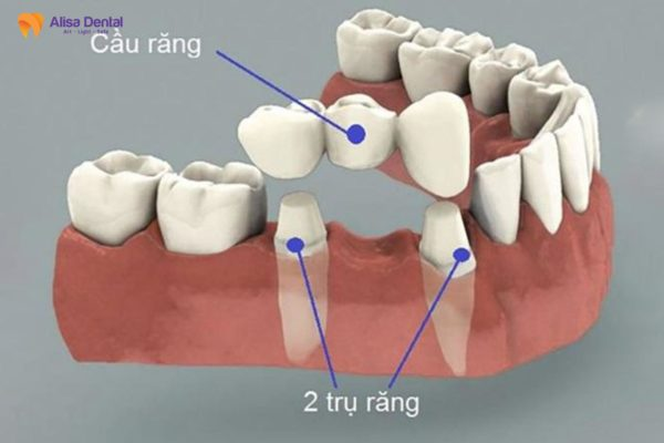 Trồng răng sứ có bị hôi miệng không? 1