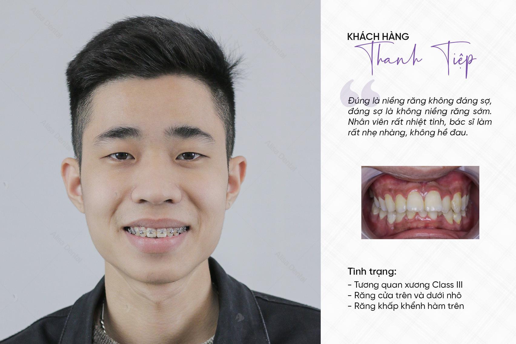 răng hô xấu 7
