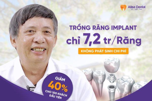 Implant nha khoa 5