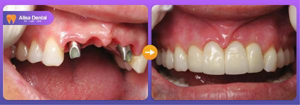 Mất răng cửa 7