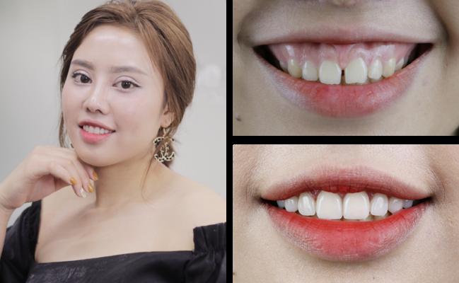 Hàm răng đẹp tự nhiên 9