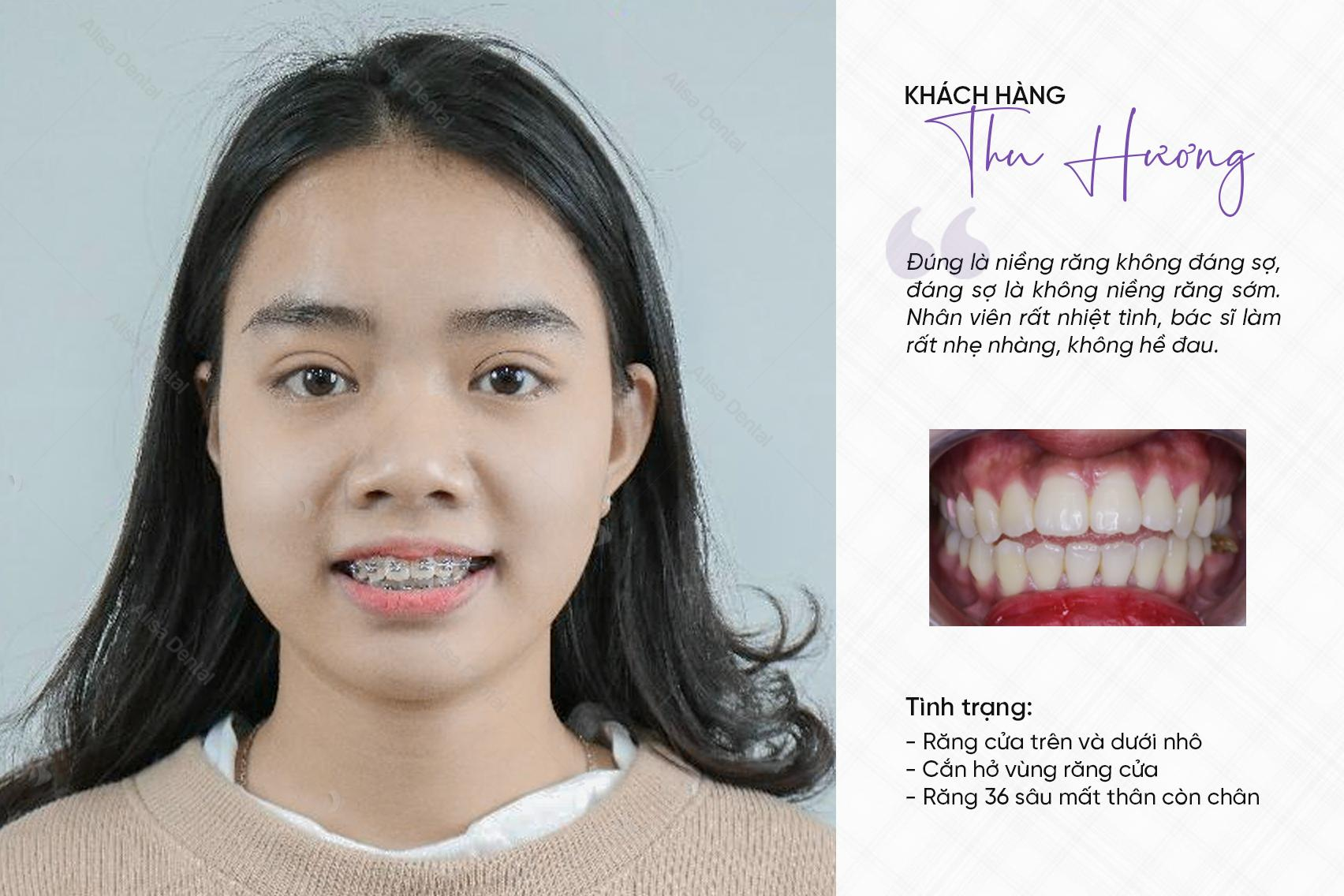 răng hô xấu 6