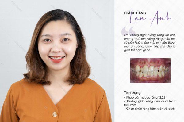 Hàm răng đẹp tự nhiên 12