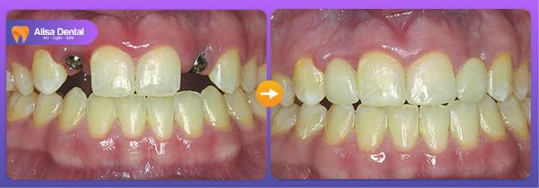 Mất răng phải làm sao 3