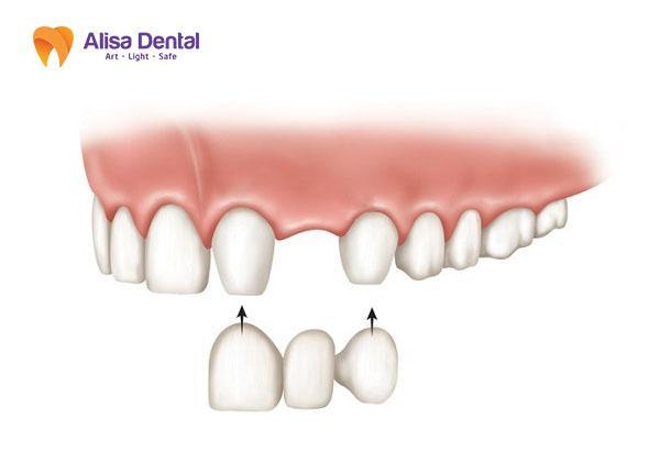 Trồng răng hàm giá bao nhiêu 3