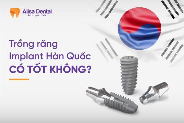 răng implant Hàn Quốc 2