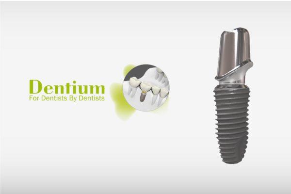 răng implant Hàn Quốc 5