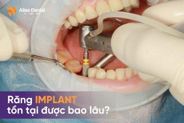 Răng implant tồn tại bao lâu 2