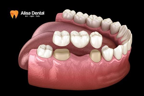 nên trồng răng sứ hay Implant 2