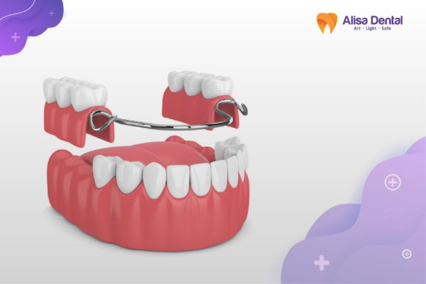 Mất răng hàm 5