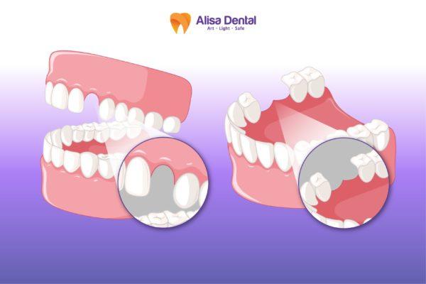 Trồng răng giá bao nhiêu? - Giá ưu đãi chỉ 7,2 triệu/răng Implant 4