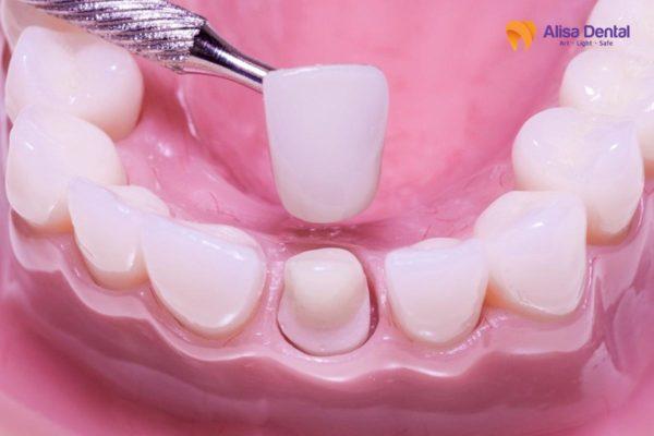 Gãy răng cửa 4