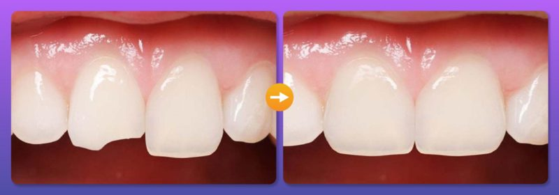 Gãy răng cửa 3