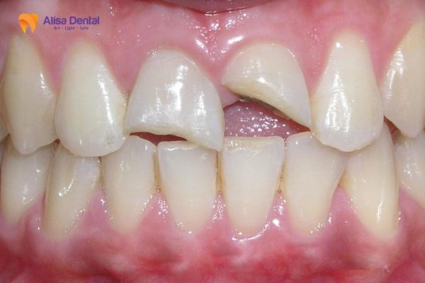 Gãy răng cửa 2