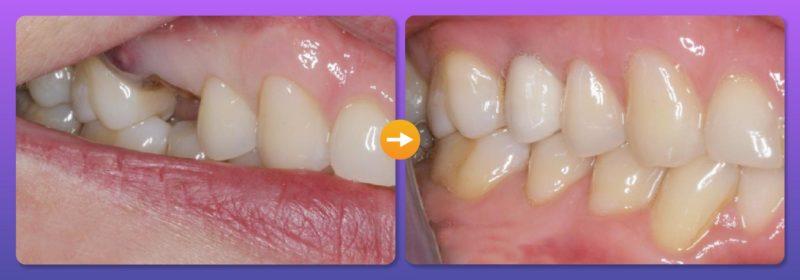 Mất răng hàm 4